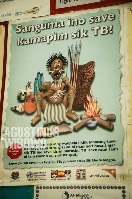 """Poster pesan sosial: """"Sanguma (penyihir) tidak bisa menyebabkan penyakit TBC"""" (AGUSTINUS WIBOWO)"""