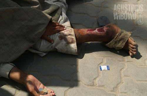 Scars of war on the streets of Kabul
