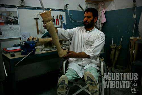 A doctor with damaged legs is making artificial legs for the patients