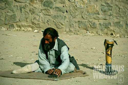 Many people with disabilities end up begging on the streets, because lack of opportunities